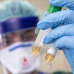В Украине подтвердилось 47 случаев инфицирования COVID-19: новая статистика